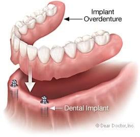 Illustration of Implant Retained Denture