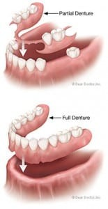 Comparison of Partial and Full Denture