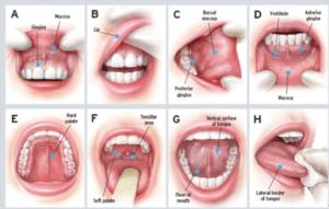 Step By Step Oral Cancer Self Exam Steps
