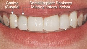 Close Up of Mouth Outlining Canine and Dental Implant Replacement