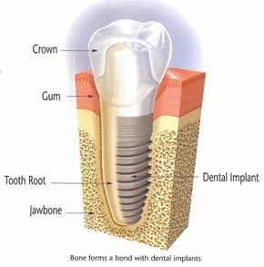 Diagram Showing Bone Forming Bond with Dental Implant