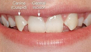Close Up of Missing Lateral Incisors