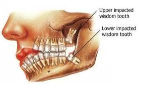 Upper and Lower Wisdom Teeth Diagram