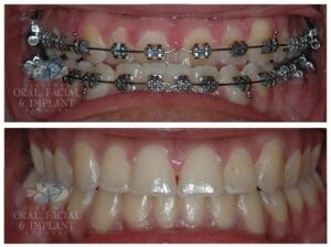 Patient 1c Jaw Surgery Before and After