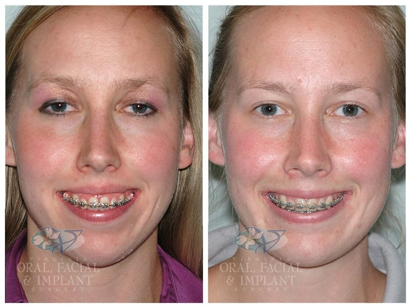 Patient 2a Jaw Surgery Before and After