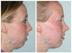 Patient 2b Jaw Surgery Before and After