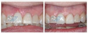 Patient 10a Dental Implant and Temporary Crown Before and After