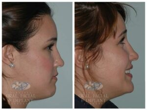 Patient 3b Jaw Surgery Before and After