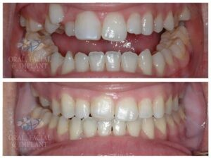 Patient 3c Jaw Surgery Before and After