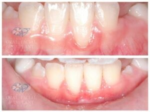 Patient 5 Gum Grafting Before and After