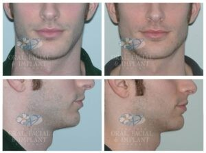 Patient 7 Before and After Jaw Implants