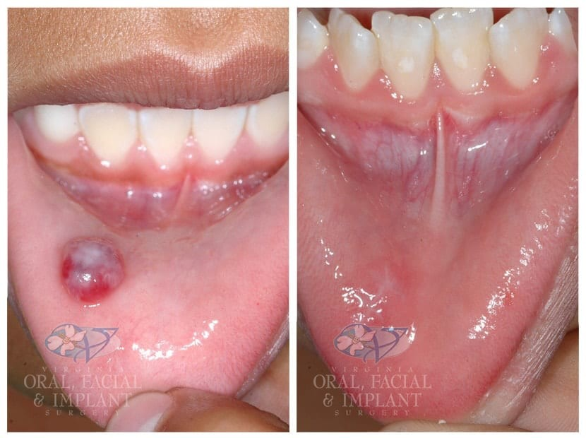 Patient 8 Pediatric Biopsy Before and After