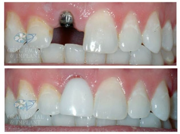 Patient 9 Dental Implant and Temporary Crown Before and After