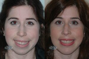 Patient 13 Frontal Orthognathic Surgery Before and After