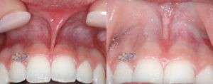 Patient 15 Frenulectomy Before and After