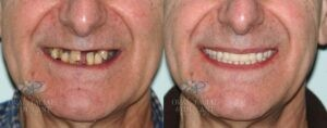 Patient 14a Dental Implant Overdenture Before and After