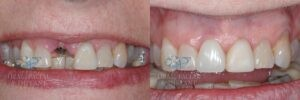 Patient 10c Dental Implant and Temporary Crown Before and After