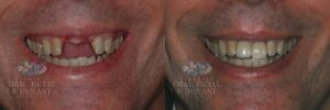 Patient 17 Dental Implants with Crown Before and After