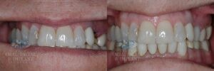 Patient 18 Dental Implants with Crown Before and After