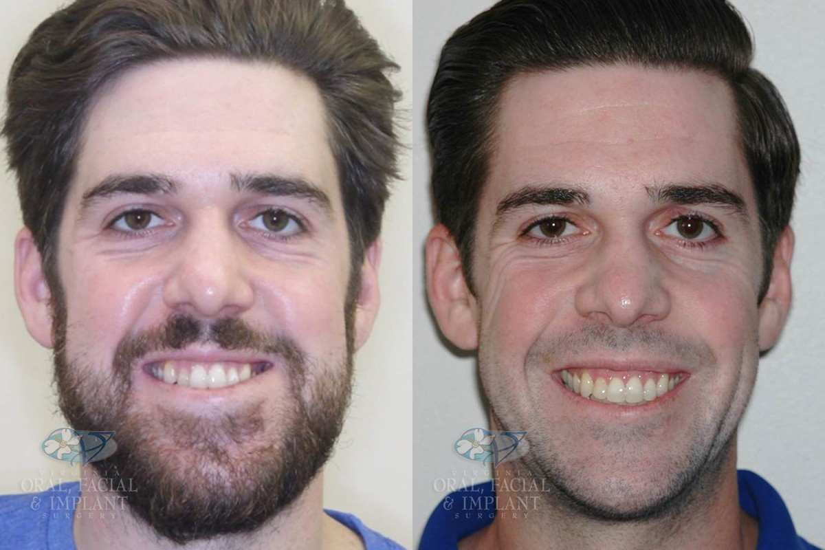 Patient 19a Orthognathic Surgery Before and After