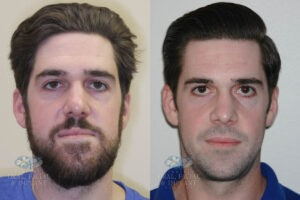 Patient 19b Orthognathic Surgery Before and After