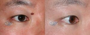 Patient 9 Mole Removal Before and After