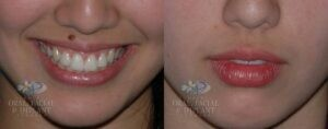 Patient 7 Mole Removal Before and After