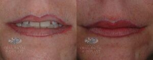 Patient 13 Lip Filler Before and After