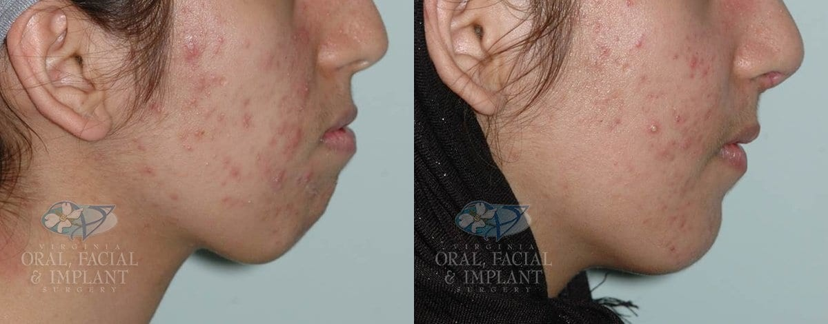 Patient 12 Genioplasty Before and After