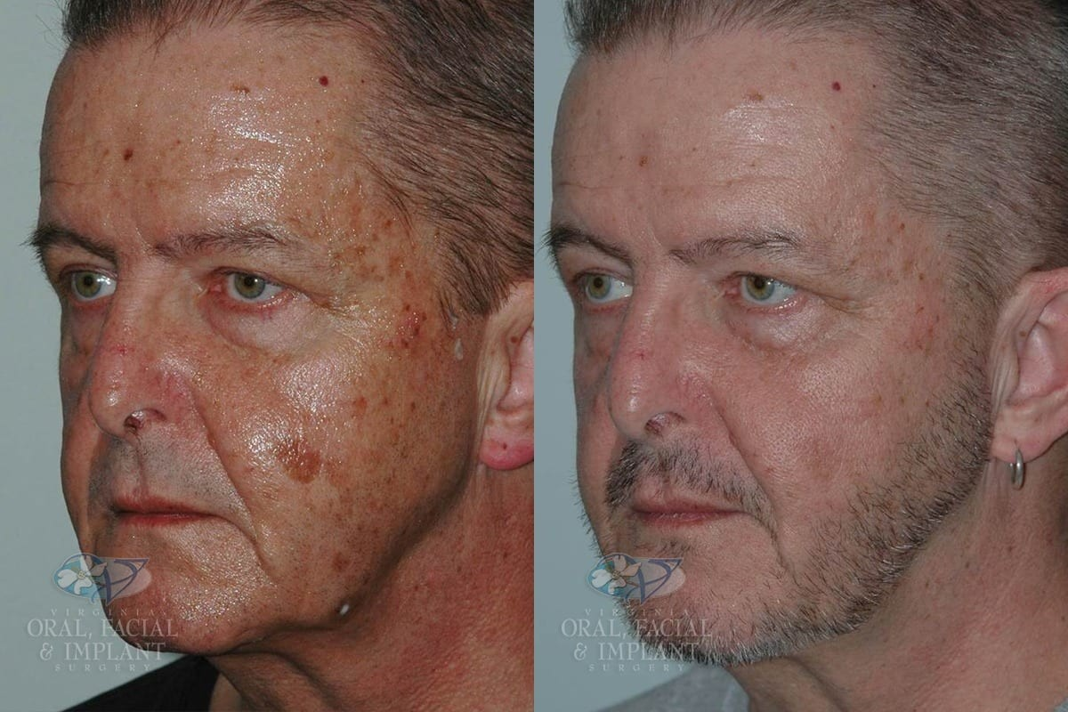 Patient 2 Laser Resurfacing Before and After