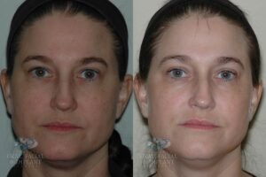 Patient 3 Laser Resurfacing Before and After