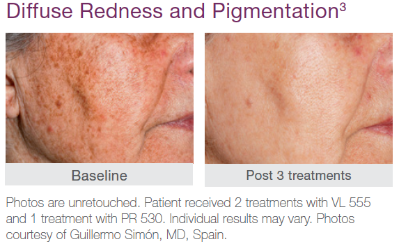 Redness Pigmentation Before and After Treatment