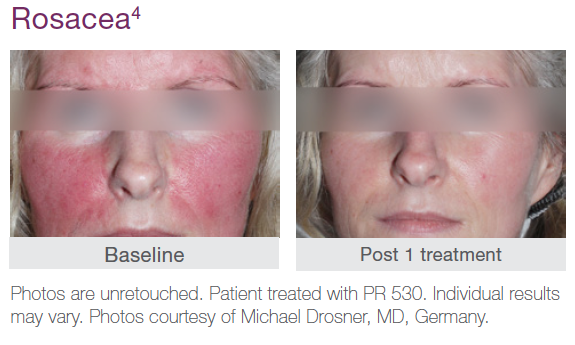 Rosacea Before and After Treatment Example