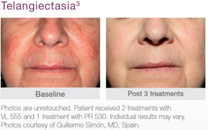 Telangiectasia Before and After Treatment