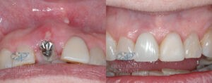 Dental Implants Before and After Real Patient 2