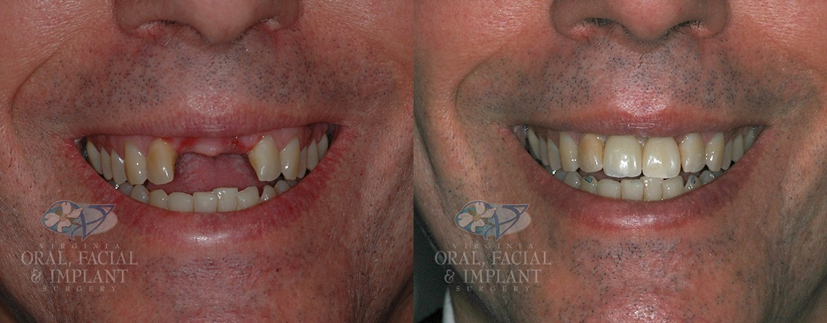 Dental Implants Before and After Real Patient 4